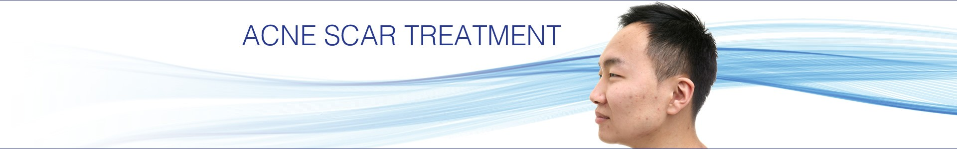 Acne Scar Treatment - Smooth Skin Health Centre Hamilton