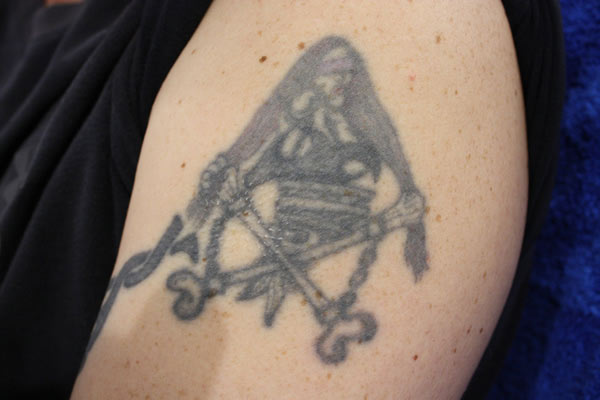 Laser tattoo removal in Hamilton at Smooth Skin Care on Dundurn St. Before treatments.